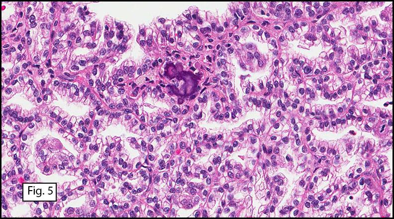 Page 11 California Tumor Tissue Registry